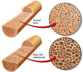 Bone Mineral Density & Osteoporosis