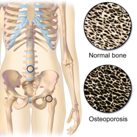 reverse Osteoporosis