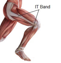 Tight IT Band